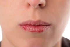 特写镜头与易碎和干燥嘴唇,概念嘴唇婆罗双树的womanÂ的面孔 免版税库存图片