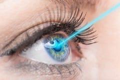 特写镜头与激光医学的妇女眼睛 免版税库存图片