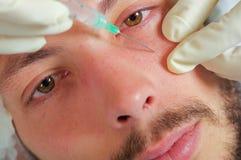 年轻特写镜头人接受面部化妆治疗射入,有拿着注射器的手套的医生手的面孔 免版税库存图片
