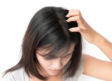 特写镜头妇女手痒的头皮,护发 免版税库存图片