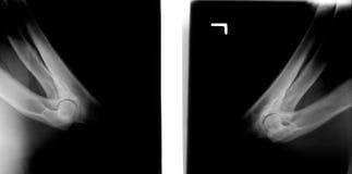 狗前肢X-射线  免版税库存图片