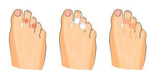 玉米的例证在脚趾的 免版税库存图片