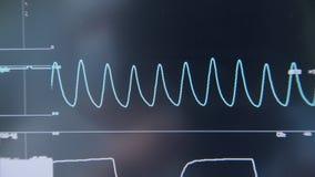 现代医疗设备显示器有患者心电图的特护病房的 影视素材