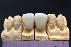 瓷牙牙插入物 免版税图库摄影