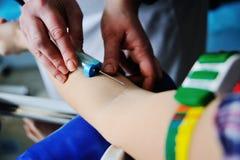 医生采取从一条静脉的血液在患者 库存照片