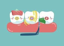 生长在前面或在另一个牙、牙和牙概念的牙的牙齿后 库存照片