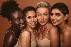 用不同的皮肤类型的美丽的妇女 免版税库存图片