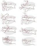 用夹板固定一个断腿 向量例证