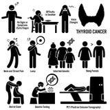 甲状腺癌Clipart 免版税图库摄影