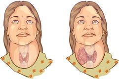 甲状腺的医疗例证 免版税库存照片