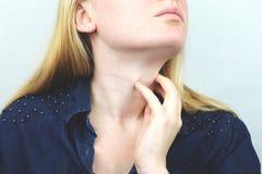 甲状腺 逗人喜爱的病的年轻白肤金发的妇女特写镜头画象有白色的上面的喉咙痛,握在她的脖子的手 免版税库存图片