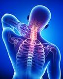 男在蓝色的返回和脖子痛解剖学  库存图片