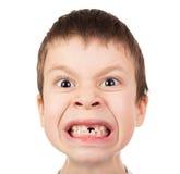 男孩与一颗失去的牙的面孔特写镜头 免版税图库摄影