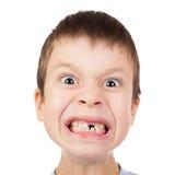 男孩与一颗失去的牙的面孔特写镜头 图库摄影
