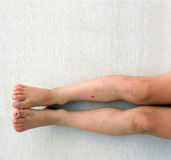 男孩受伤的腿 免版税库存图片