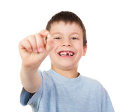 男孩展示一颗失去的牙 免版税库存图片