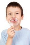 男孩展示失去的牙通过放大镜 免版税库存照片