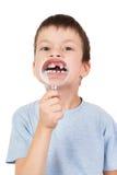男孩展示通过放大镜失去的牙 图库摄影