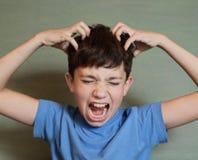 男孩抓痕他的顶头蚤入侵 库存图片