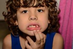 男孩掉了他的第一颗牙 库存图片