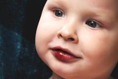 男孩有在嘴唇的一个残破的创伤 免版税库存照片