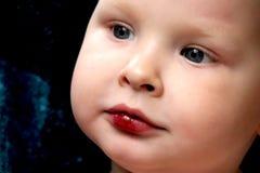 男孩有在嘴唇的一个残破的创伤 库存图片