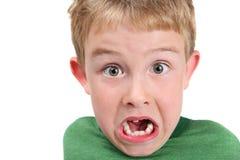 男孩错过的微笑的牙 免版税图库摄影