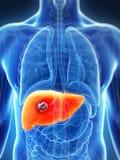 男性肝脏-癌症 库存照片