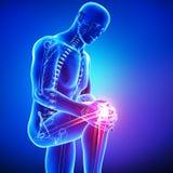 男性膝盖痛苦解剖学在蓝色的 免版税库存图片