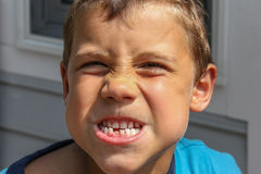 男性青年时期掉他的第一颗牙 库存图片