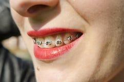 畸齿矫正术牙 免版税库存图片