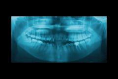 畸齿矫正术的全景牙齿X-射线 库存图片