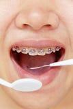 畸齿矫正术,牙齿概念 库存照片