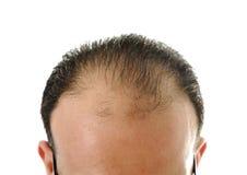 疏松头发,光秃的人 库存图片