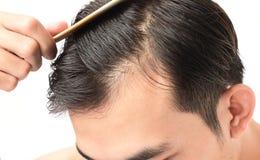 年轻医疗保健香波的人严肃的掉头发问题和 免版税库存图片
