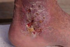 医疗图片:传染蜂窝织炎 库存照片