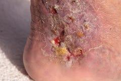 医疗图片:传染蜂窝织炎 免版税库存图片
