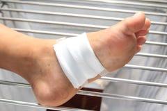 治疗患者与脚溃疡 免版税库存照片