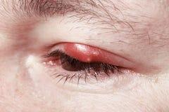 疼痛红色眼睛。Chalazion和眼睑炎。炎症 库存图片