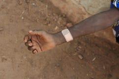 疼的矮小的非洲男孩室外特写镜头射击 库存图片