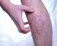痒的皮肤病 库存照片