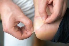 痛苦的脚跟创伤供以人员新的鞋子造成的脚 供以人员手 免版税图库摄影