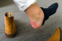 痛苦的脚跟创伤供以人员新的鞋子造成的脚 破裂的ter 库存图片