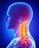 痛苦解剖学在女性的脖子的 免版税库存图片