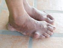 痛风患者的脚 免版税库存照片