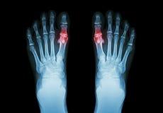 痛风,风湿性关节炎(影片X-射线脚和关节炎在第一跖趾关节) (医学和科学backg 免版税图库摄影