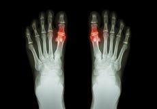 痛风,风湿性关节炎(影片X-射线脚和关节炎在第一跖趾关节) (医学和科学backg 库存照片