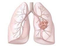 癌症肺 免版税库存照片