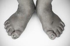 黑白照片或肮脏的脚后面和白色或破裂的脚跟孤立在白色背景,医疗或脚人民的健康 免版税图库摄影