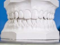 白色模子牙齿膏药 免版税库存图片